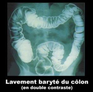 lavement-baryte-double-contraste